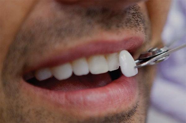 Carillas dentales estica y cosmetica para disseny de somriures