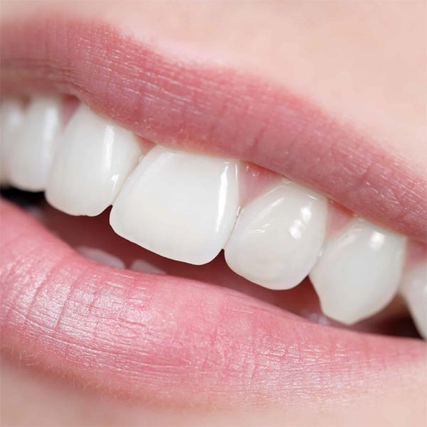 Carilles dentals composite