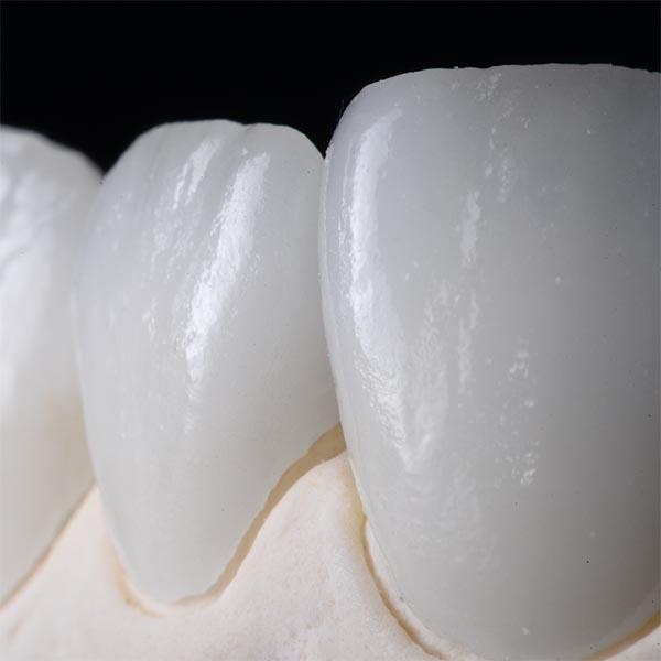 Carilles dentals de porcelana a Blanes girona