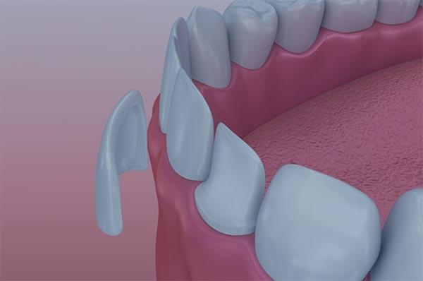 Carilles dentals a Blanes