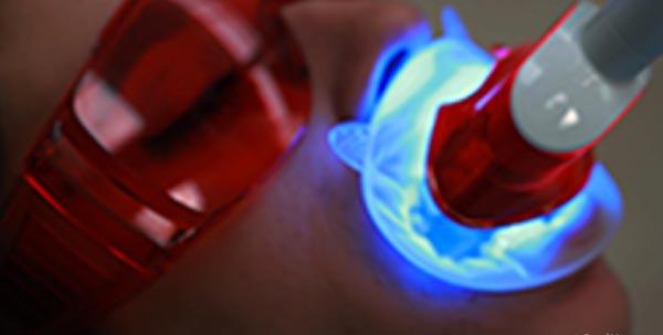 Enblanquiment dental fotoactivació a clinica blanes girona