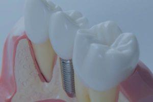 Implants de càrrega immediata a blanes girona