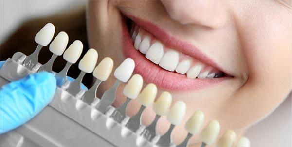Millor enblanquiment dental de clinica a Blanes a Girona