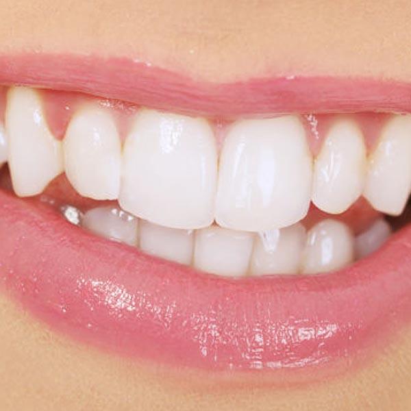 Pulit de dents a través de neteja dental blanes girona