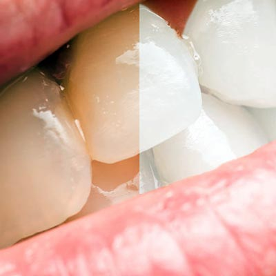 Enblanquiment dental de taques extrinseques exogenes a blanes girona