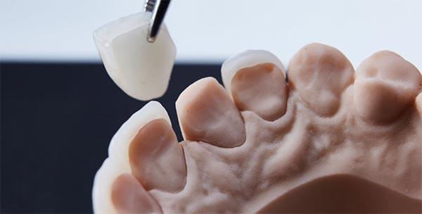 tipus de carilles dentals a Blanes Girona