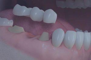 Protesi dental fixa sobre dents
