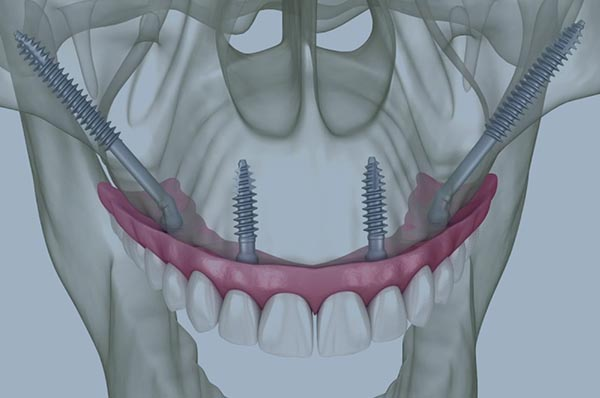 implants cigomatics