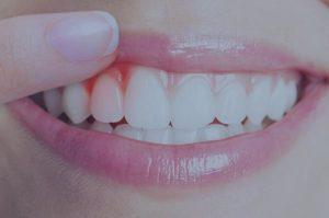 Manteniment periodontal a blanes girona