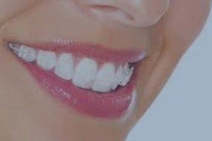 Ortodoncia brackets zafiro
