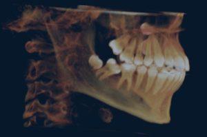 tac dental 3d blanes girona