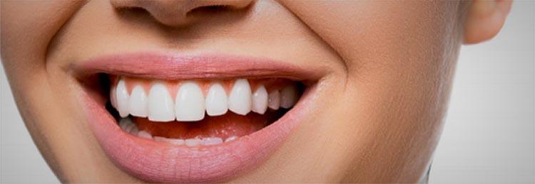 Tipus de corones dentals
