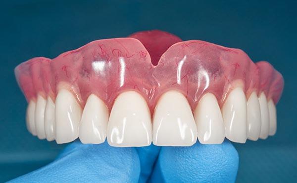 Dentadura postiza