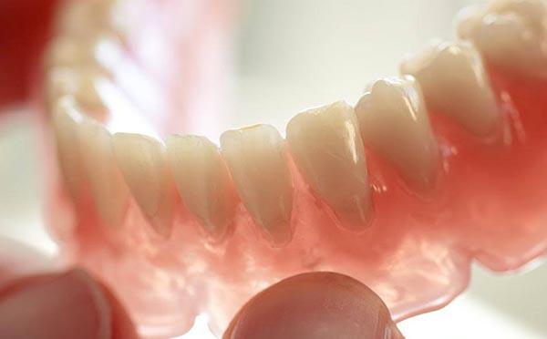 Dentadura fixa amb implants