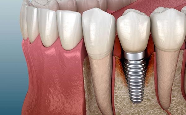 Implants per a dentadures fixes