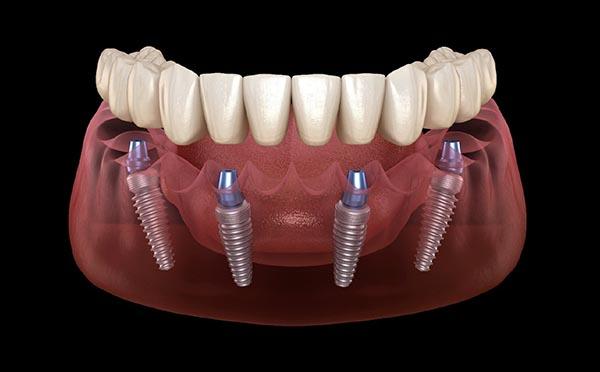 Dentadura fixa sobre implants