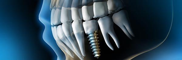 Implant o pont dental