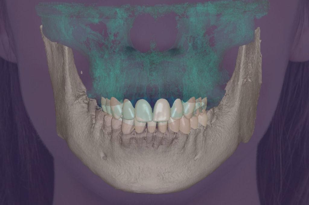 3D dsd diseño de sonrisas blanes girona