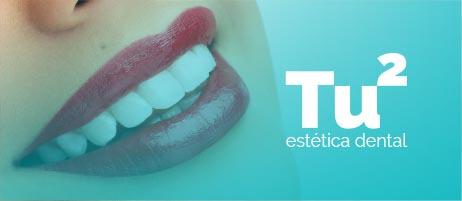 Clínica estética dental en blanes, girona