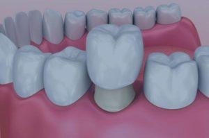 Corona dental blanes girona