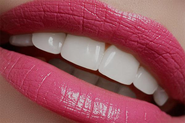 Dsd diseño sonrisa estética dental