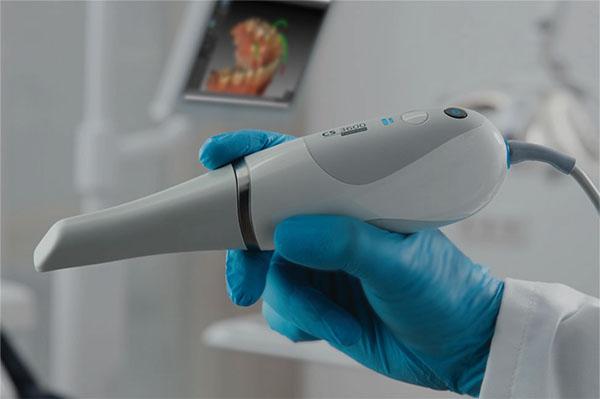 Escaner 3d dsd diseño de sonrisas