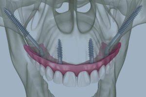 Implantes cigomáticos en blanes girona