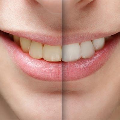 limpieza dental manchas intrinsecas endógenas blanes girona