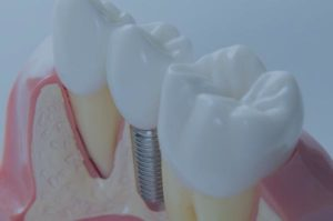 Los implantes de carga inmediata en blanes girona