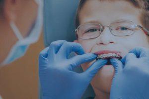 Ortodoncia infantil en blanes girona