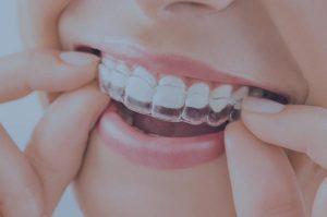 Ortodoncia invisible en blanes en girona