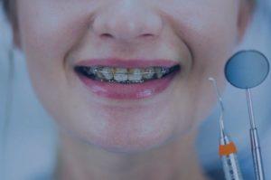 Ortodoncia para mayores de 50 años