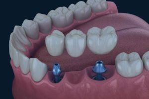 Puente dental blanes girona