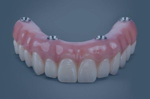 Restaurar toda la boca en un solo día