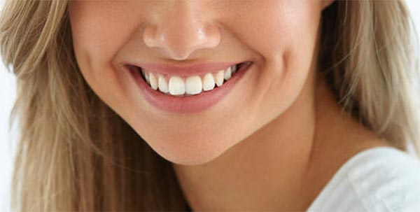 Ventajas carillas dentales blanes girona