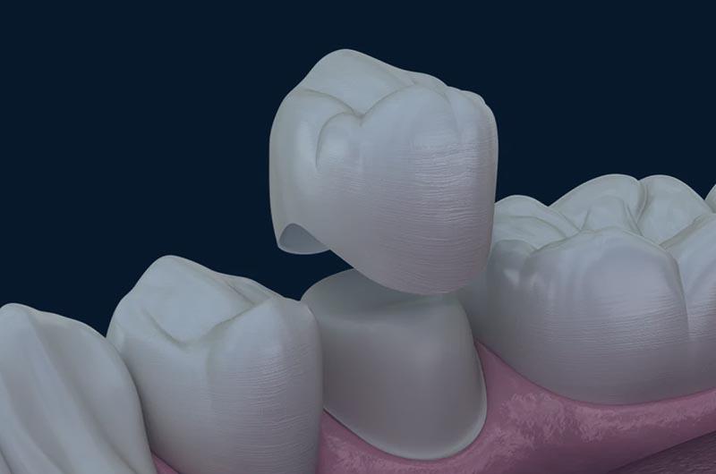 Corona dental cerámica en blanes girona
